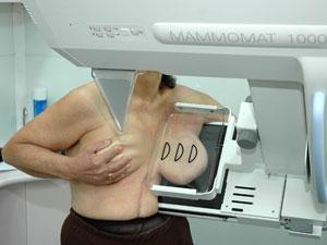 mamografia_300_225