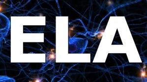 ESCLEROSE neuronios-cerebro-20110608-size-62...