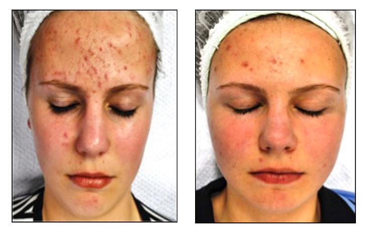 Cosméticos do Mar Morto de um acne
