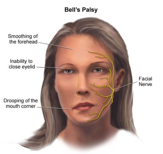 Acordei com uma Paralisia Facial...e agora, o que fazer?