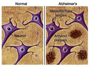 placas-y-neuronas