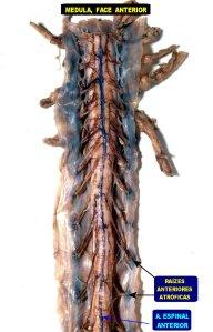Medula Anterior ELA