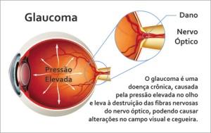 univi_glaucoma