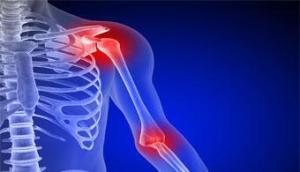 injecao-artrite-shutterstock (1)