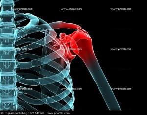dor-no-ombro-dor-artrite-dor-artrite_149945