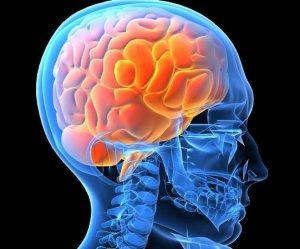 cerebro0001