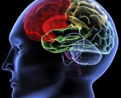cerebro6-250x203