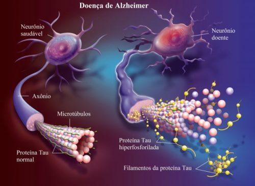 doença-de-Alzheimer-640x466