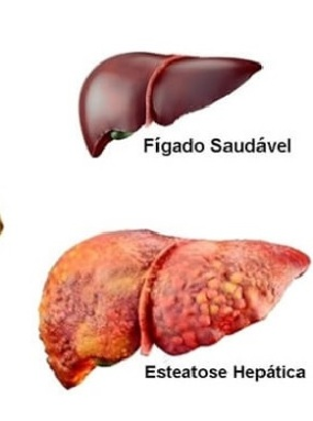 fígado3